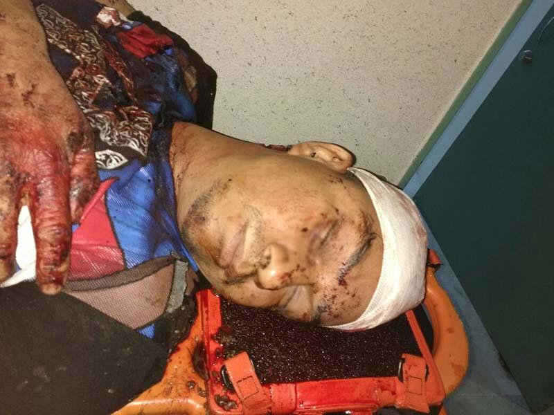 Asaltan y golpean a joven en centro de Toluca