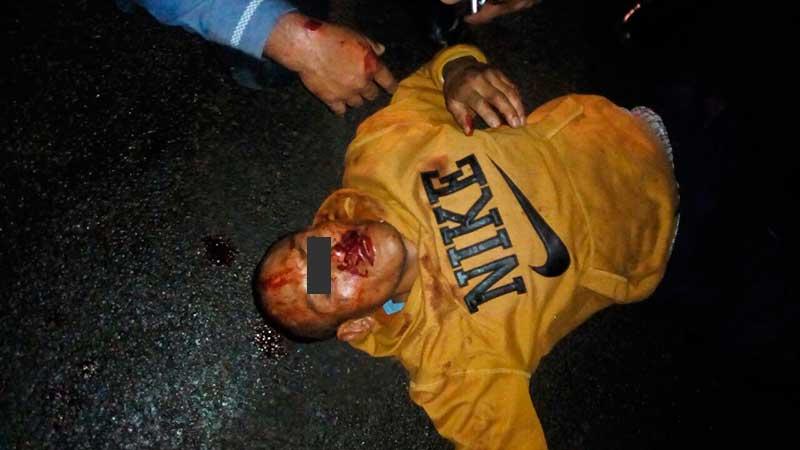 Tunden a golpes a presunto ladrón de autos, lo rescatan policías de Zinacantepec