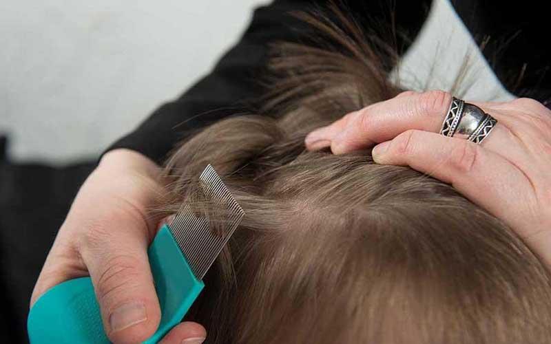 Importante la detección oportuna de pediculosis (piojos) en niños