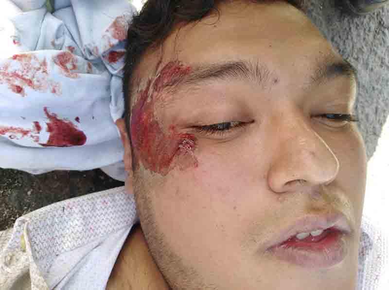 Resulta lesionado motociclista tras caer en bache