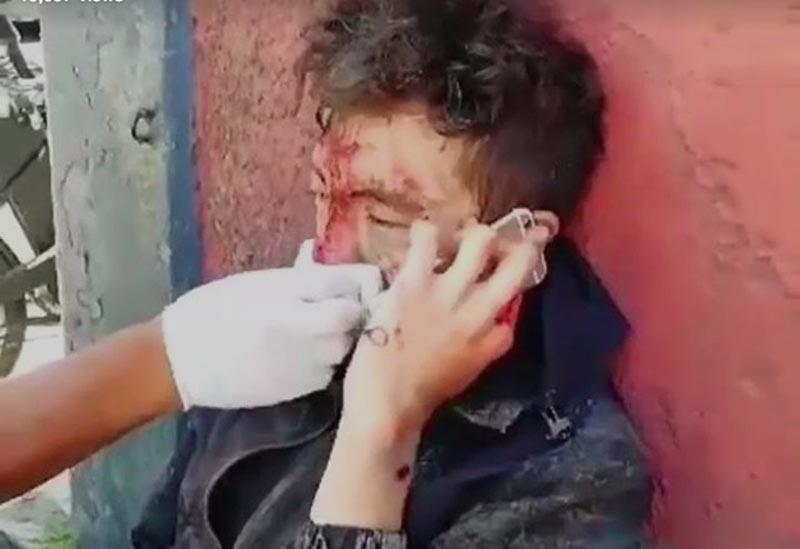 Ofrecen ayuda a repartidor de Uber Eats herido por bache