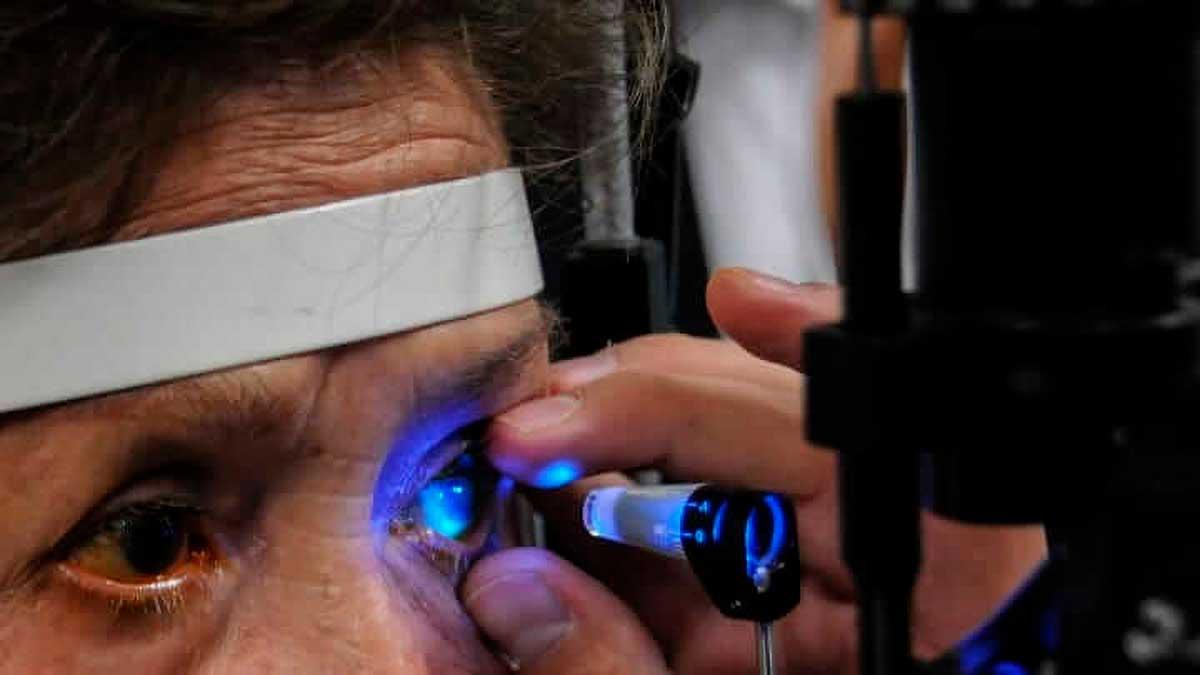 Es glaucoma primera causa de ceguera; pide ISEM prevenir y atender esta enfermedad