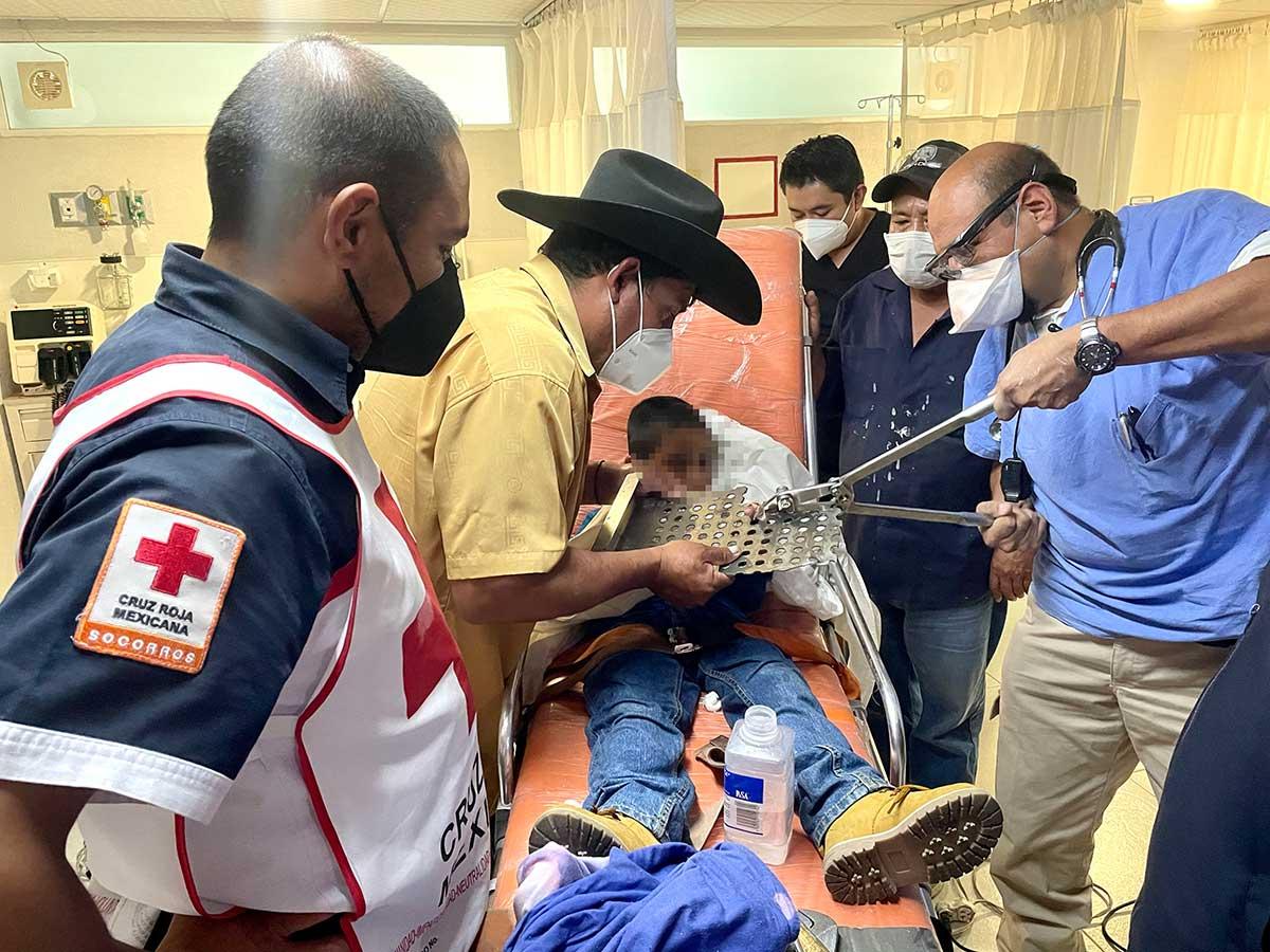 La Cruz Roja de Toluca salva el dedo a un niño